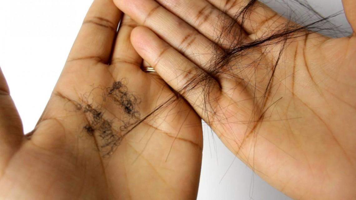 5 signes qui montrent que votre défrisage abîme vos cheveux